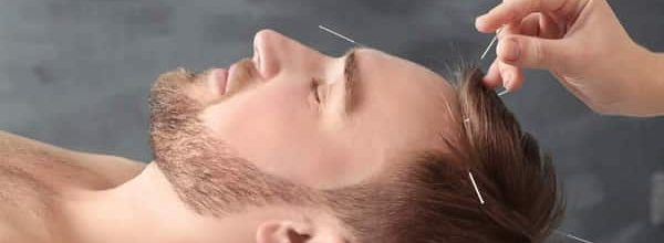 What to Expect from My Gentle Acupuncture Treatment